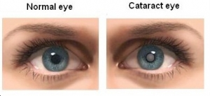 Cataract Treatment In Mumbai
