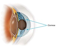 Cornea or Keratoconus Treatment in mumbai