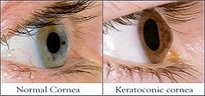 Symptoms & signs of Keratoconus