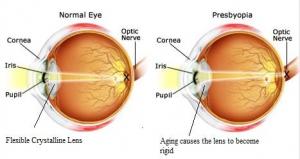 presbyopia-test1