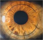 New Vistas In Surgical Treatment Of Keratoconous : Intacs (Intra Corneal Ring Segments)