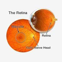 Retina Treatment in Mumbai, Bandra, Kandivali